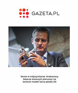 Biuro projektowe Grid artykuł w Gazeta pl model 3d serca płodu